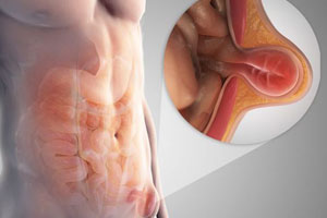 Best Hernia Treatment & Surgery in Pune